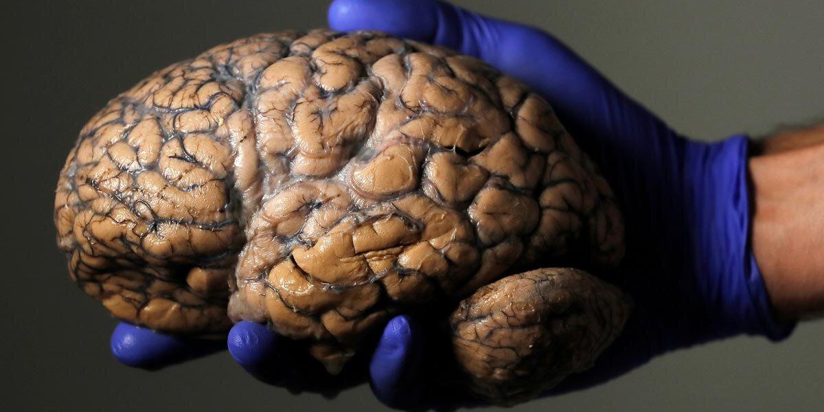 beyin-sagliginiz-icin-egzersiz-yapmanizi-gerektiren-6-onemli-sebep